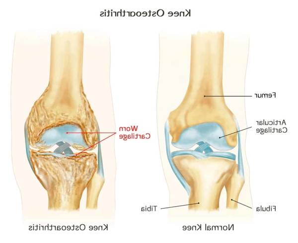 arthritis prevention physical activity